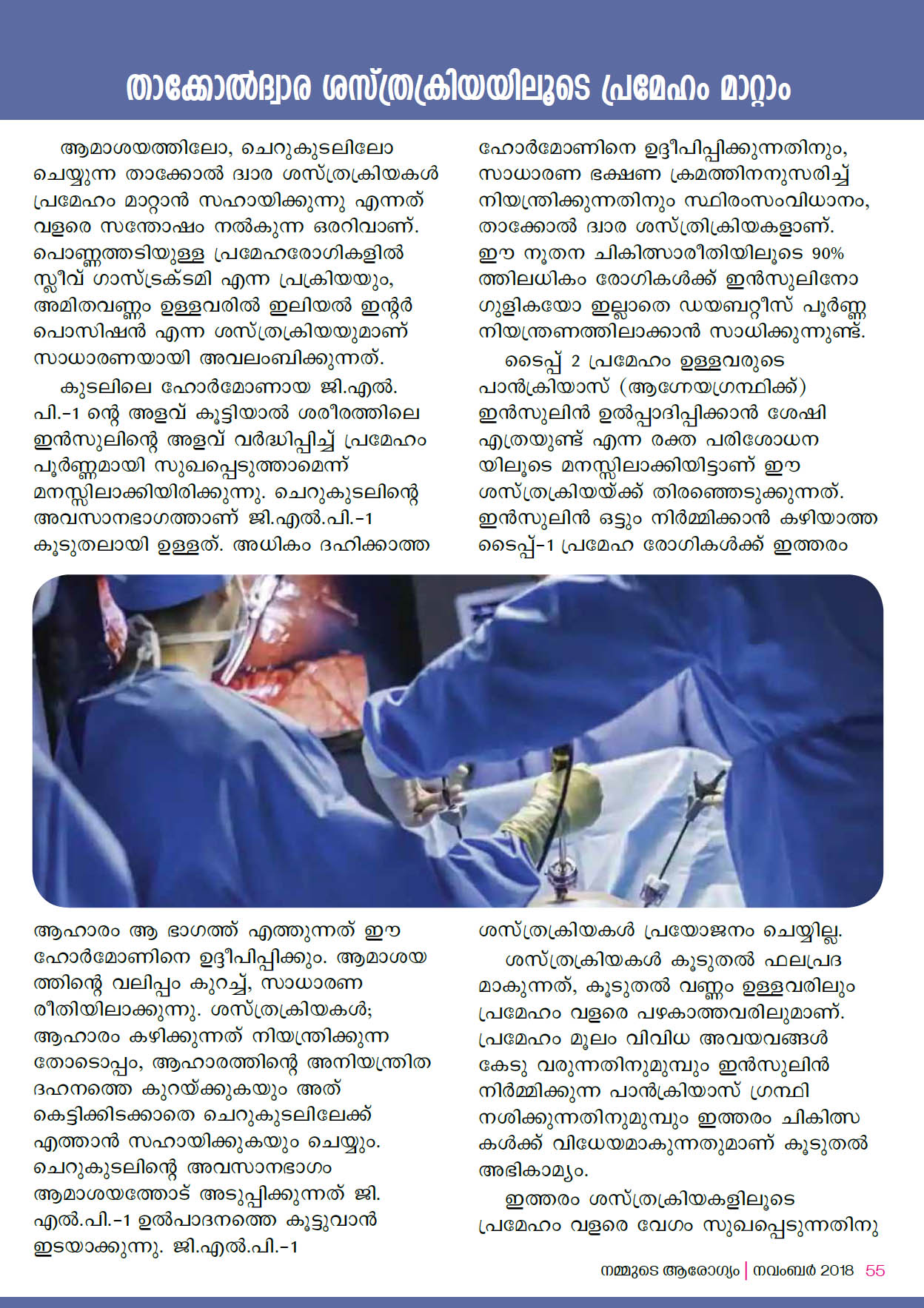 Keyhole Surgery for Diabetes by Dr R Padmakumar  Page 4