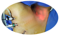 Endoscopic Thyroidectomy via Axilla