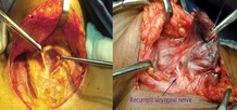 Open Thyroidectomy cuts on the neck.  In Endoscopic Thyroidectomy no cuts on neck.