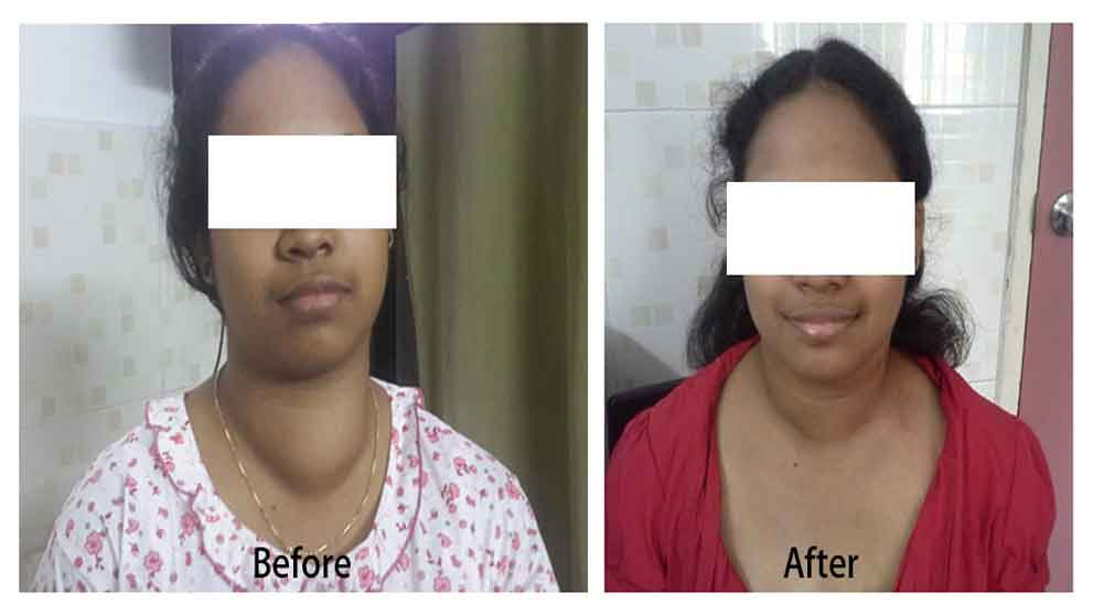 Endoscopic thyroidectomy - scarless thyroid removal Before and after picture