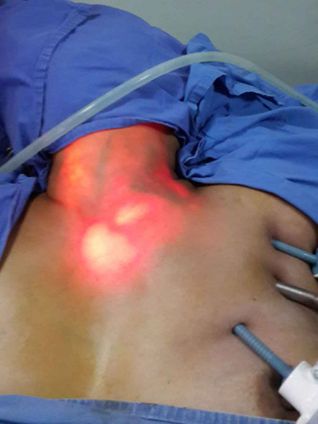 Endoscopic thyroidectomy surgical pictures