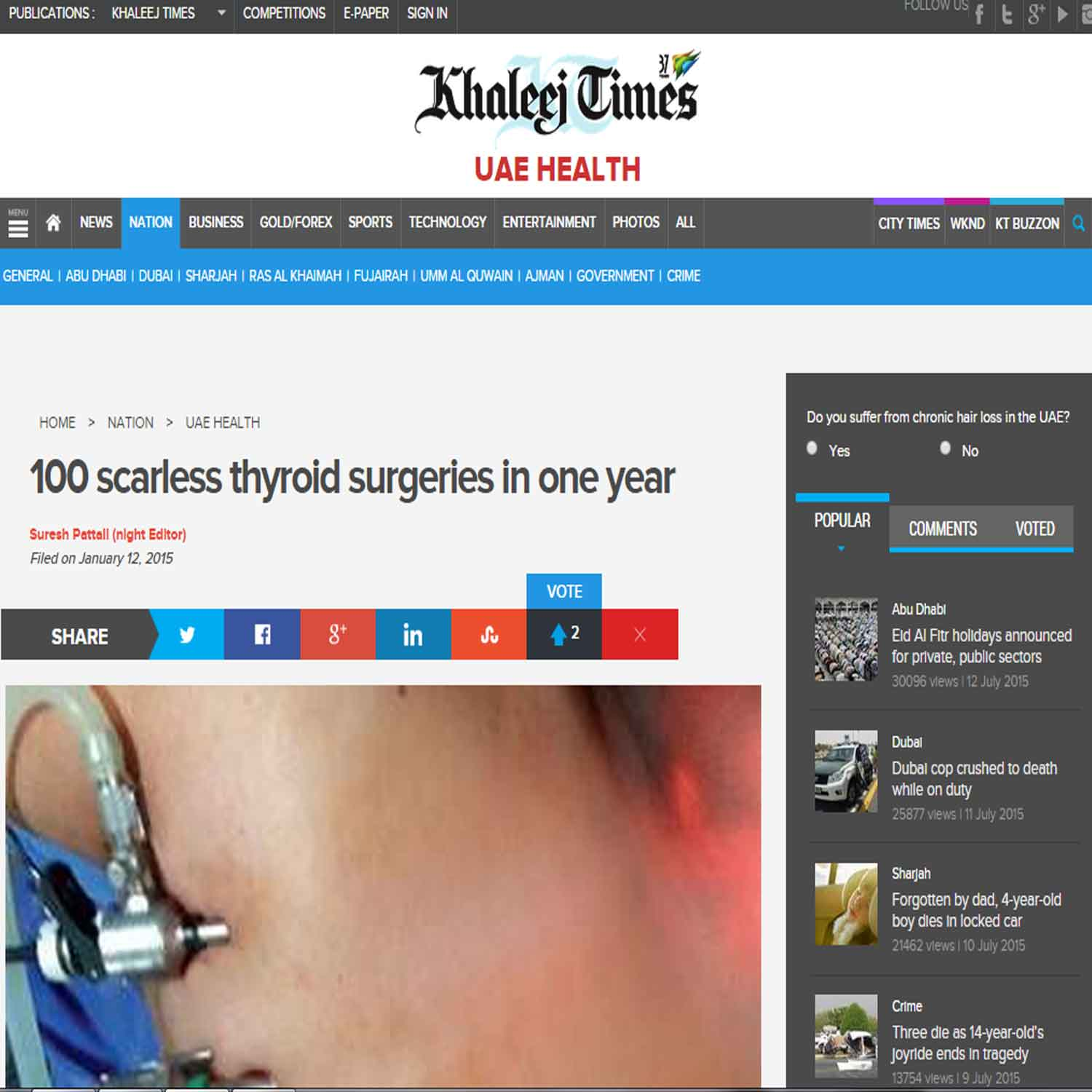 100 scarless thyroid surgeries in one year.