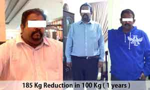 Weight Loss Surgery or Obesity Surgery by Best Bariatric Surgeon